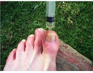 Toenail Fungus Toon Nael Swam in Health & Beauty Mpumalanga Trichardt - South Africa